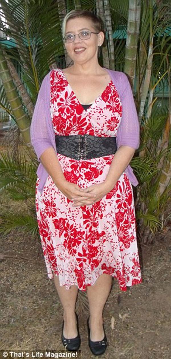 جولولي   كرهت جسدها بعد أن فقدت 133 كيلو جراما.. شاهد كيف أصبحت